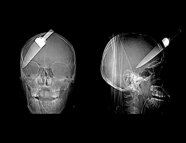 Очень необычные рентгеновские снимки (21 фото)