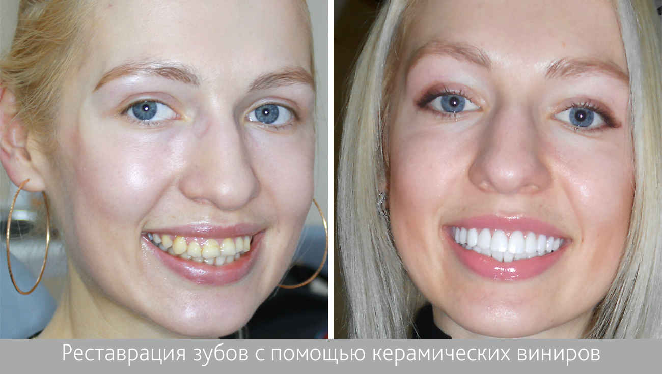 как делают виниры на зубы цена